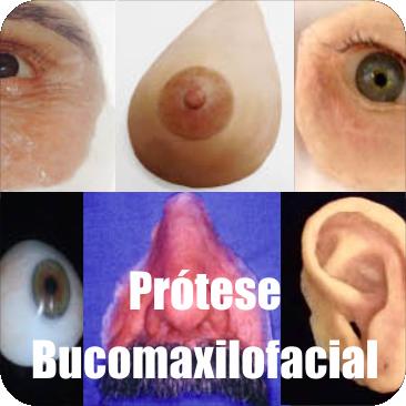 Prótese Bucomaxilofacial